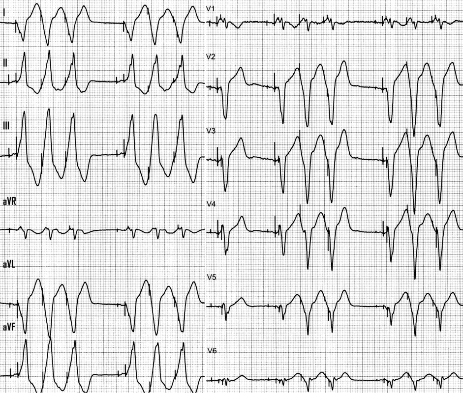 nonsustained pacemaker