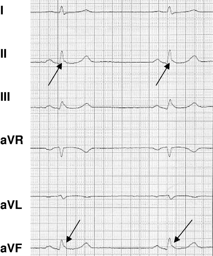 qrs fragmentation in standard ecg as a diagnostic marker