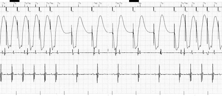 repetitive pacemaker