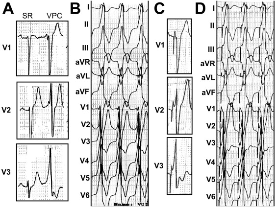 u201ctypical u201d electrocardiographic left ventricular outflow tract ventricular tachycardia ablated