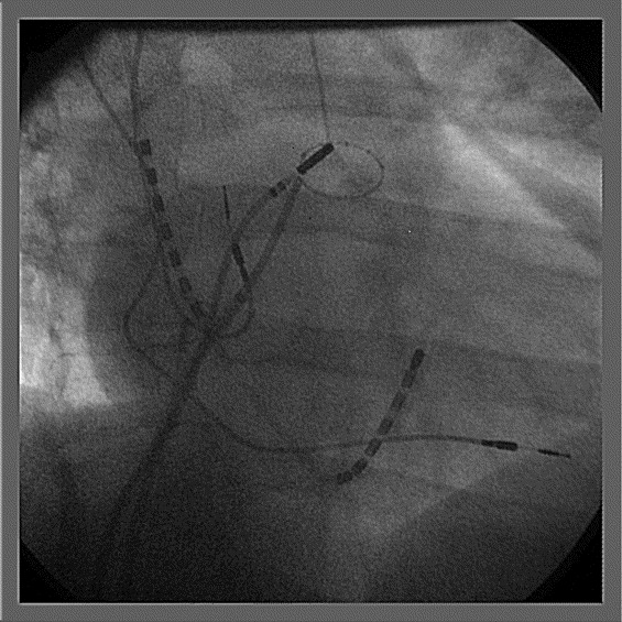 Safety and efficacy of radiofrequency energy catheter ablation of atrial fibrillation in - Ablation chambre implantable ...