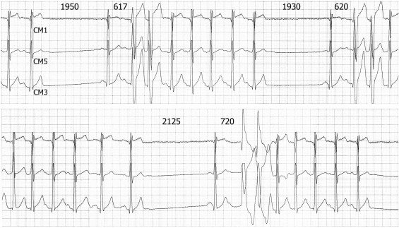 nonsustained atrial tachycardia with right or left bundle branch block aberration  what is the